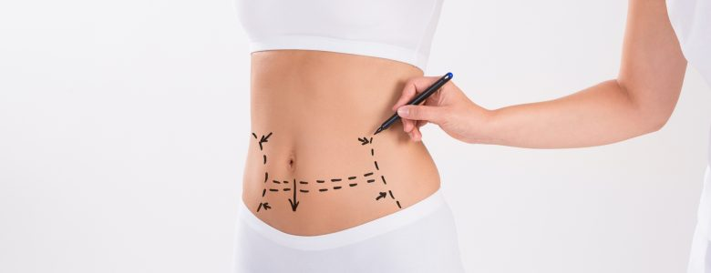 Tummy Tuck Surgery Perth - Abdominoplasty Perth - Timeless Cosmetics