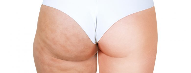 Tumescent liposuction perth - Timeless Cosmetics Surgery